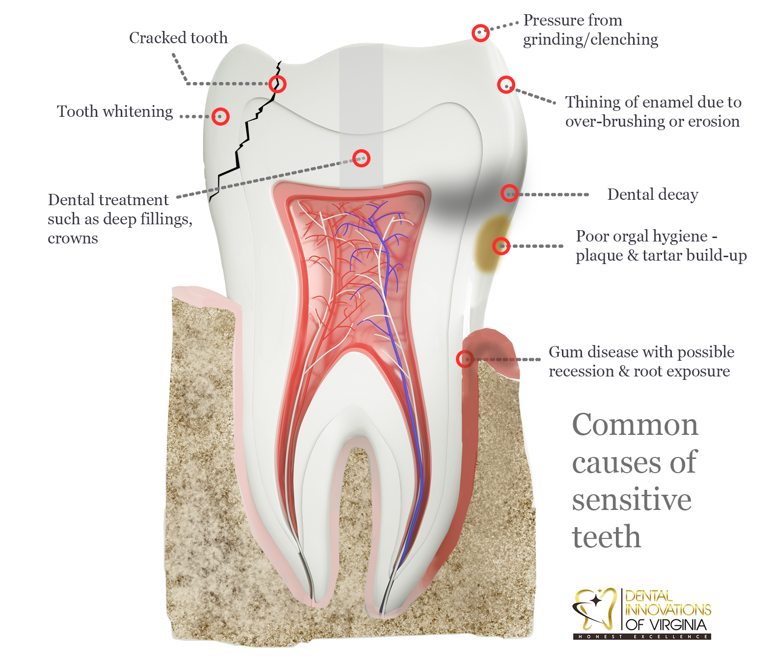 Common causes for sensitive teeth or gum