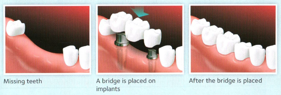 Implanted-supported bridge