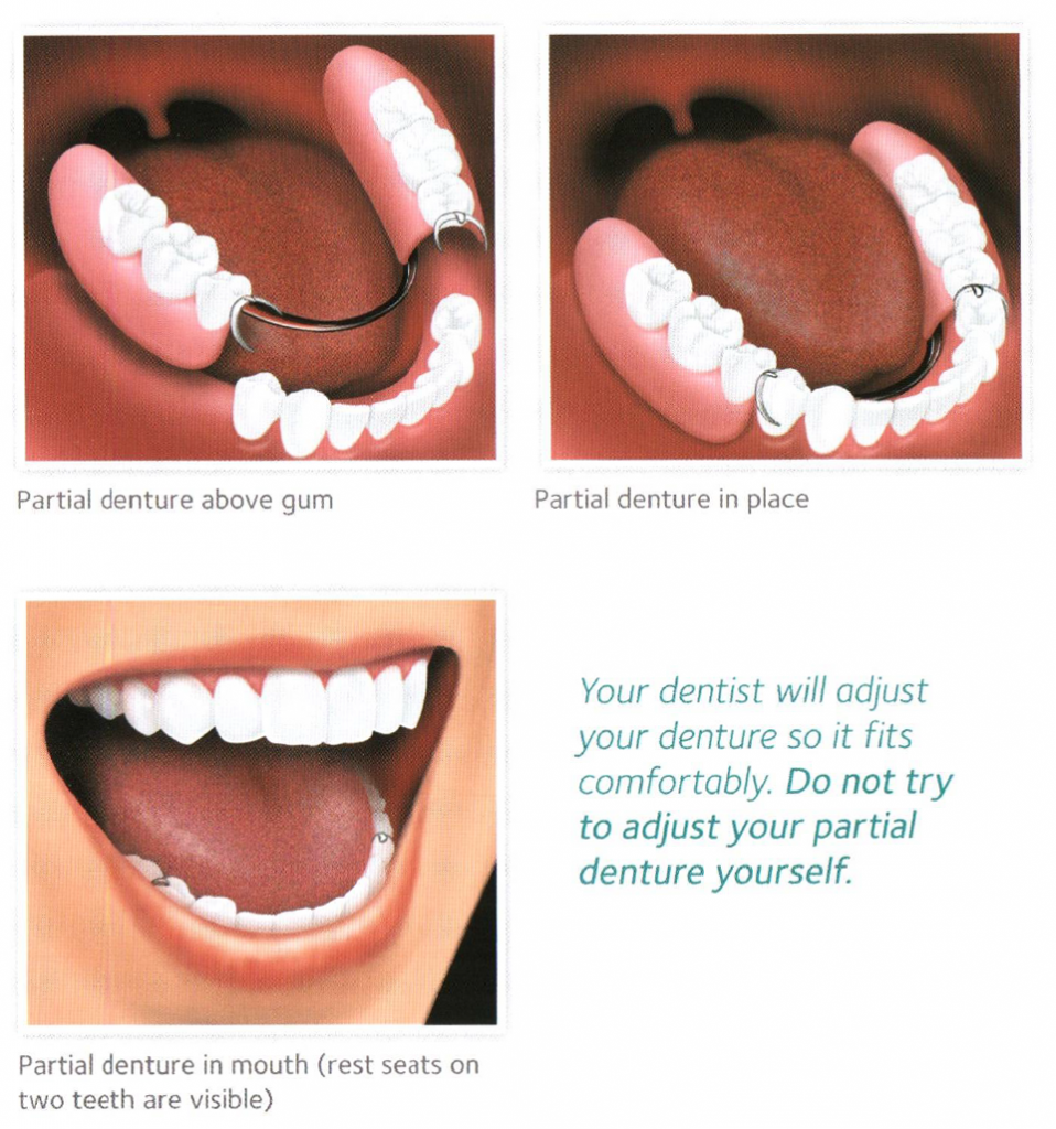 Placement of removable partial denture