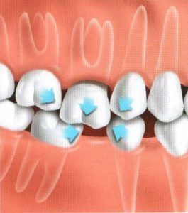 Teeth replacement options - If tooth is not replaced