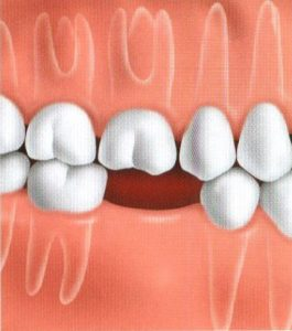 Teeth replacement options - Missing tooth