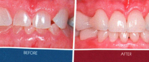 Crowns - before and after