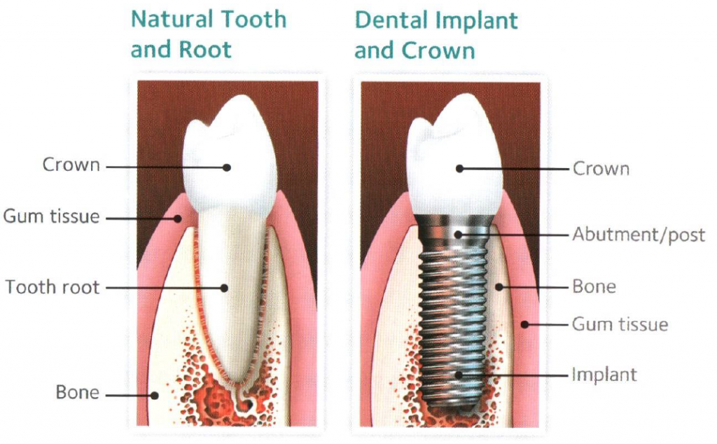 Implants - what's involved?