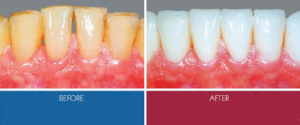 Veneers - before and after
