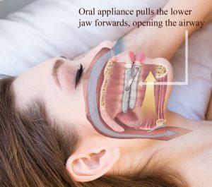 Oral Appliance for Obstructive Sleep Apnea