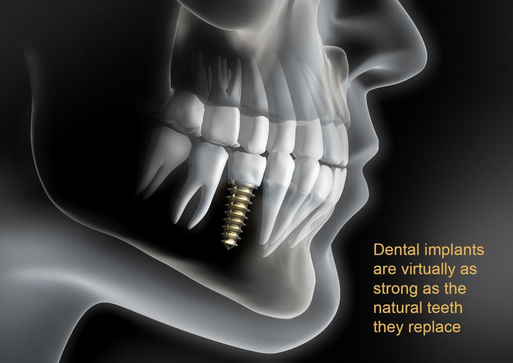 Dental Implants are virtually as strong as the natural teeth they replace